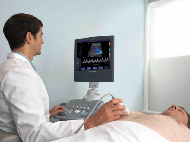 ACUSON X150 Ultrasound System 2